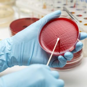 Microbial Identification & Susceptibility